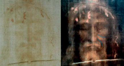 Linhas de expressão facial no Sudário de Turim. Foto: Scientia et Fides.